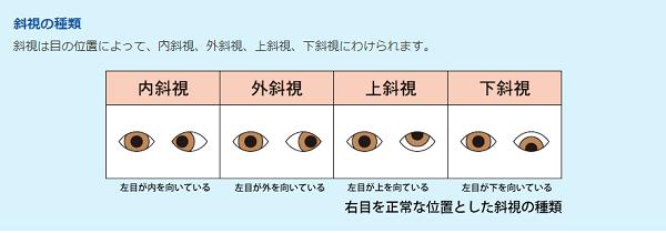 斜視の種類の写真